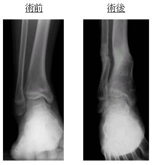 偽関節,骨欠損,骨髄炎にはbone transport法を行うこともあ...  大阪医科大学整形