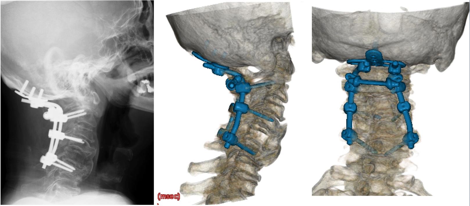 アテトーゼ頚椎症